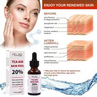 30ml Trichloroaectic Acid 20% Skin Peel Pore Minizing Wrinkles Spots Skin Care Face Serum 3