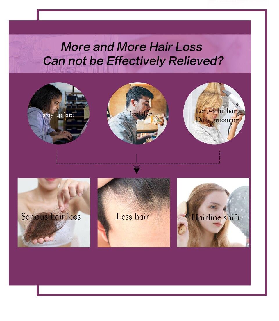 3 pçs produtos anti queda de cabelo