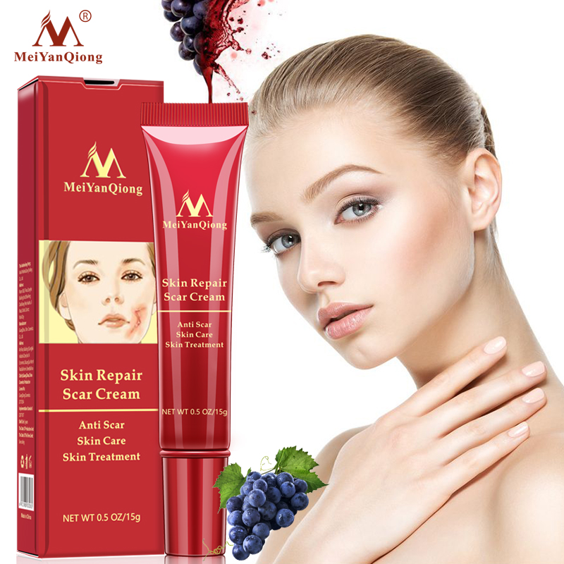 Acne Scar Removal Cream Skin Repair Face Cream Acne Spots Acne