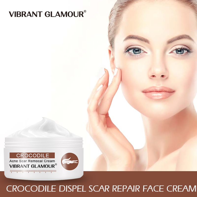 VIBRANT GLAMOUR Crocodile Dispel Scar Repair Face Cream Remove Acne Scar Stretch Marks Treatment Skin Lightening Whitening Care