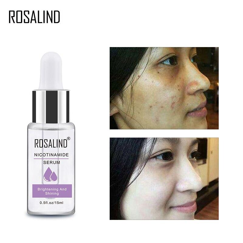 ROSALIND Niacinamide Facial Serum Wrinkle Whitening Moisturizing Cream Repair Skin Renewing Skin Facial Treatment Essence