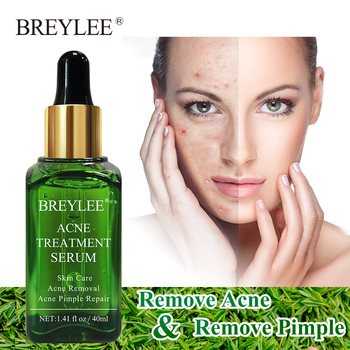 BREYLEE Acne Treatment Face Serum Removes Acne Scar Anti Acne Pimple Scar Moisturizing Whitening Shrink Pore Anti-acne Skin Care rose soap 100% natural handmade 120g hair skin beauty whitening moisturizing cleaner antibacterial acne treatment