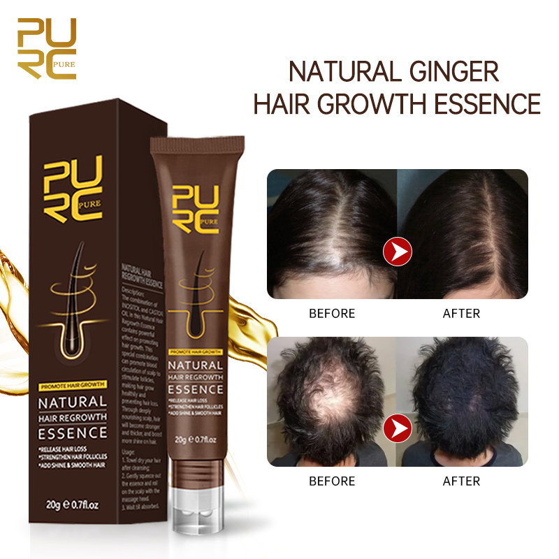 PURC Natural Hair Growth Oil Thickener Essence Anti Hairs Loss Care Scalp Massage Roller Treatments Fast Grow Hair Oil Products