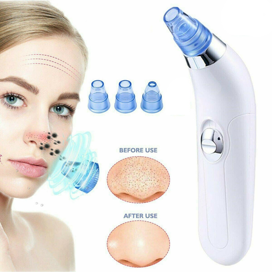 Vacuum Suction Blackhead Remover Pore Spot Cleaner Nose Facial Pore Cleaner Acne Black Head Pimple Remover Face Skin Care Tool