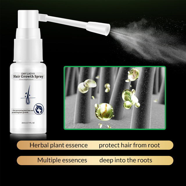 OMY LADY Anti Hair Loss Hair Growth Spray Essential Oil Liquid For Men Women Dry Hair Regeneration Repair