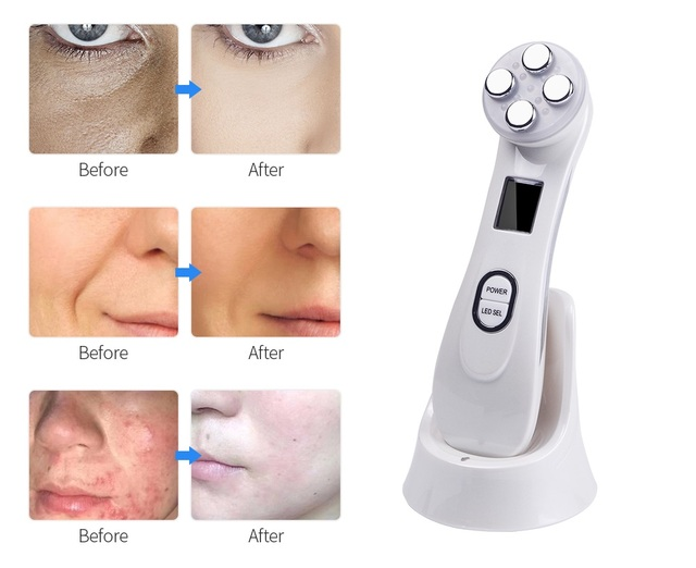 Facial Mesotherapy Electroporation RF Radio Frequency LED Photon Face Lifting Tighten Wrinkle Removal Skin Care Face