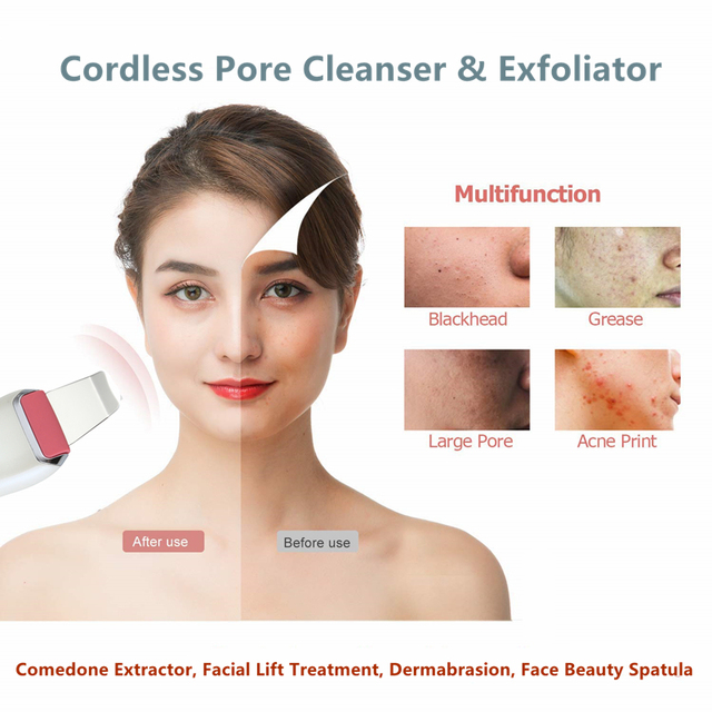 Facial Skin Cleansing Brush Skin Scrubber Blackhead Remover Facial Pores Peeling instrument Comedones Extractor Pimple Cleanser 5