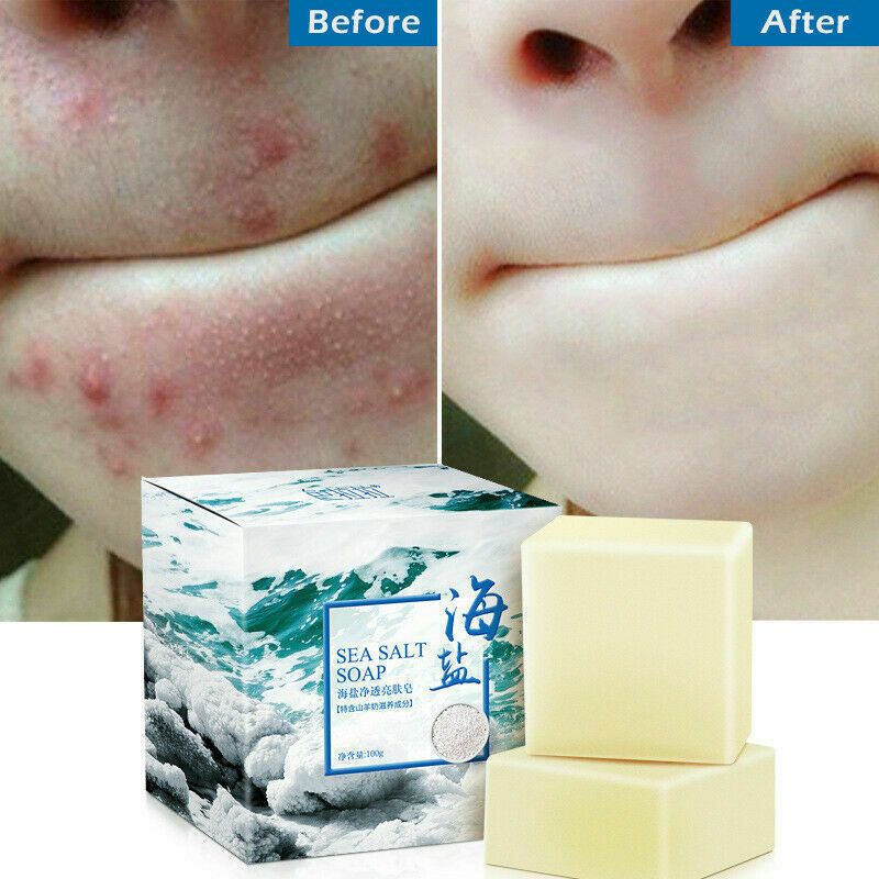 100g Sea Salt Soap Pimple Acne Treatment Goat Milk Moisturizing Face Wash Soap Bath & Shower  Soap