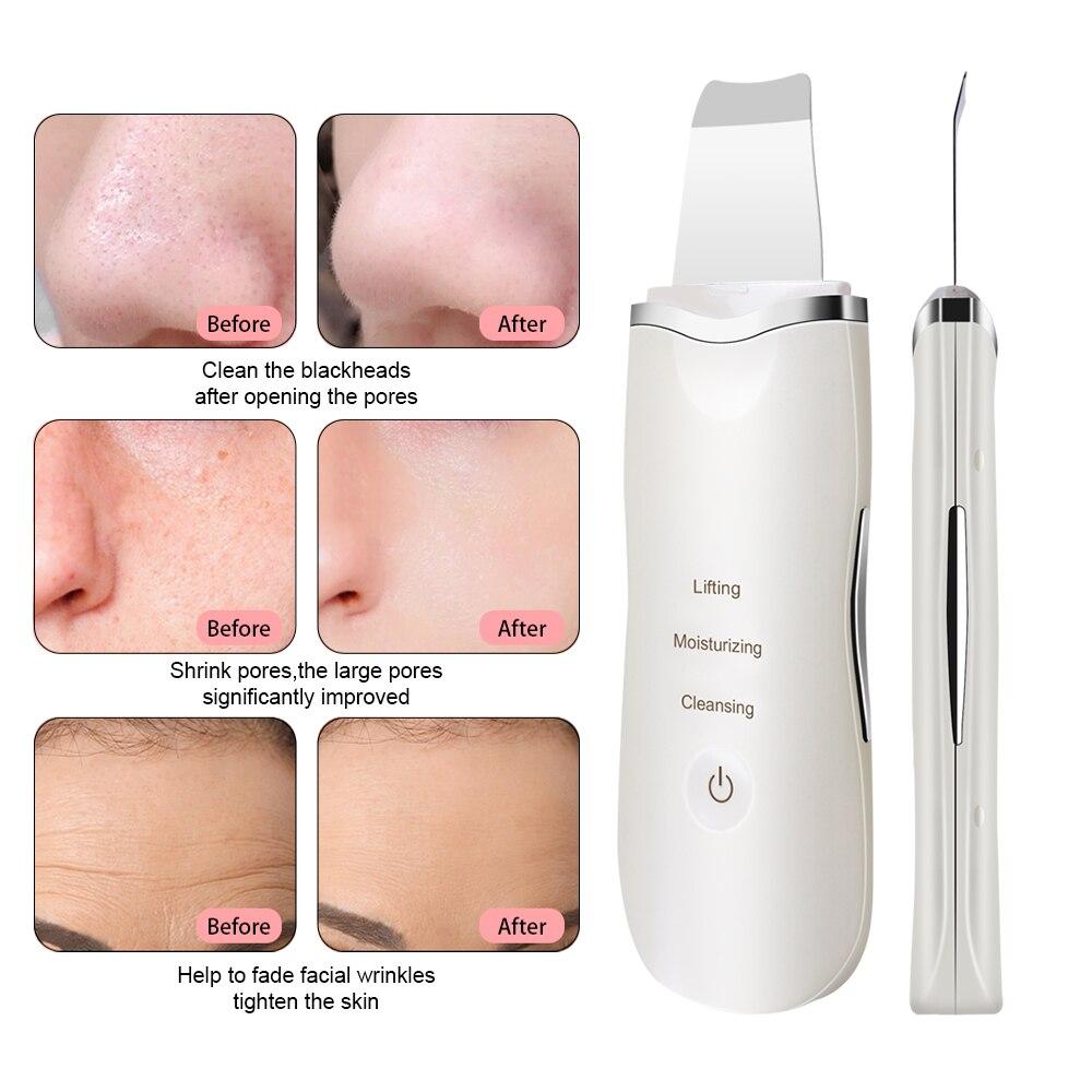 Купить профессиональный ультразвуковой скребок для кожи лица ион глубокое