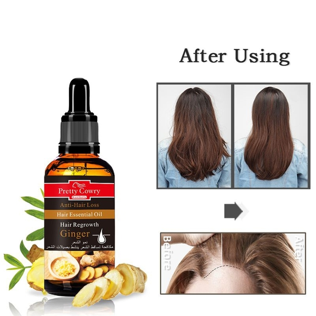 Nurishing Hair Root Anti Hair Loss Hair Growth Liquid Ginger Ginseng Garlic Essential Oil Hair Growth Liquid Hair Loss Products Aliexpress Liquid ginger — piece me back together 04:07. us 3 62 20 off nurishing hair root anti hair loss hair growth liquid ginger ginseng garlic essential oil hair growth liquid hair loss products