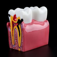 6 fois le modèle de dents danatomie de comparaison de Caries dentaires pour lenseignement de laboratoire danatomie dentaire étudiant loutil de recherche