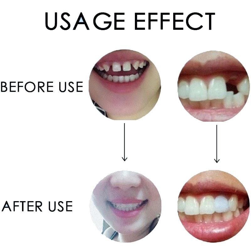 Haba65cc59668496598a2ee2d299843d7e - DIY Temporary Missing Tooth REPAIR dentures Filler Cosmetic  False Teeth Dental Replacement Material
