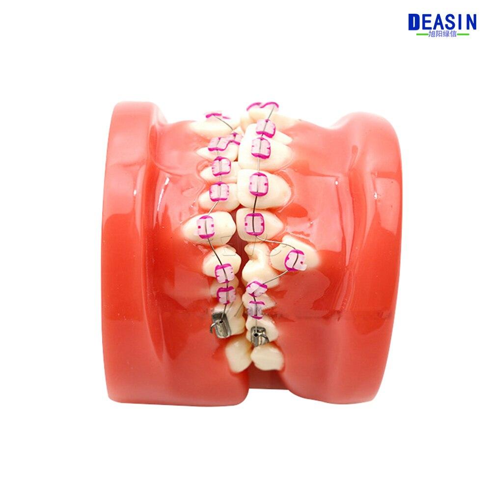 龅牙 (10)