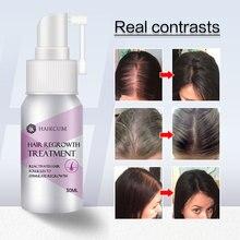 HAIRCUBE Hair Growth Essence Oil Spray for Women Fast Hair Growth Nourishing Treatment Anti Hair Loss Liquid Repair Damaged Hair
