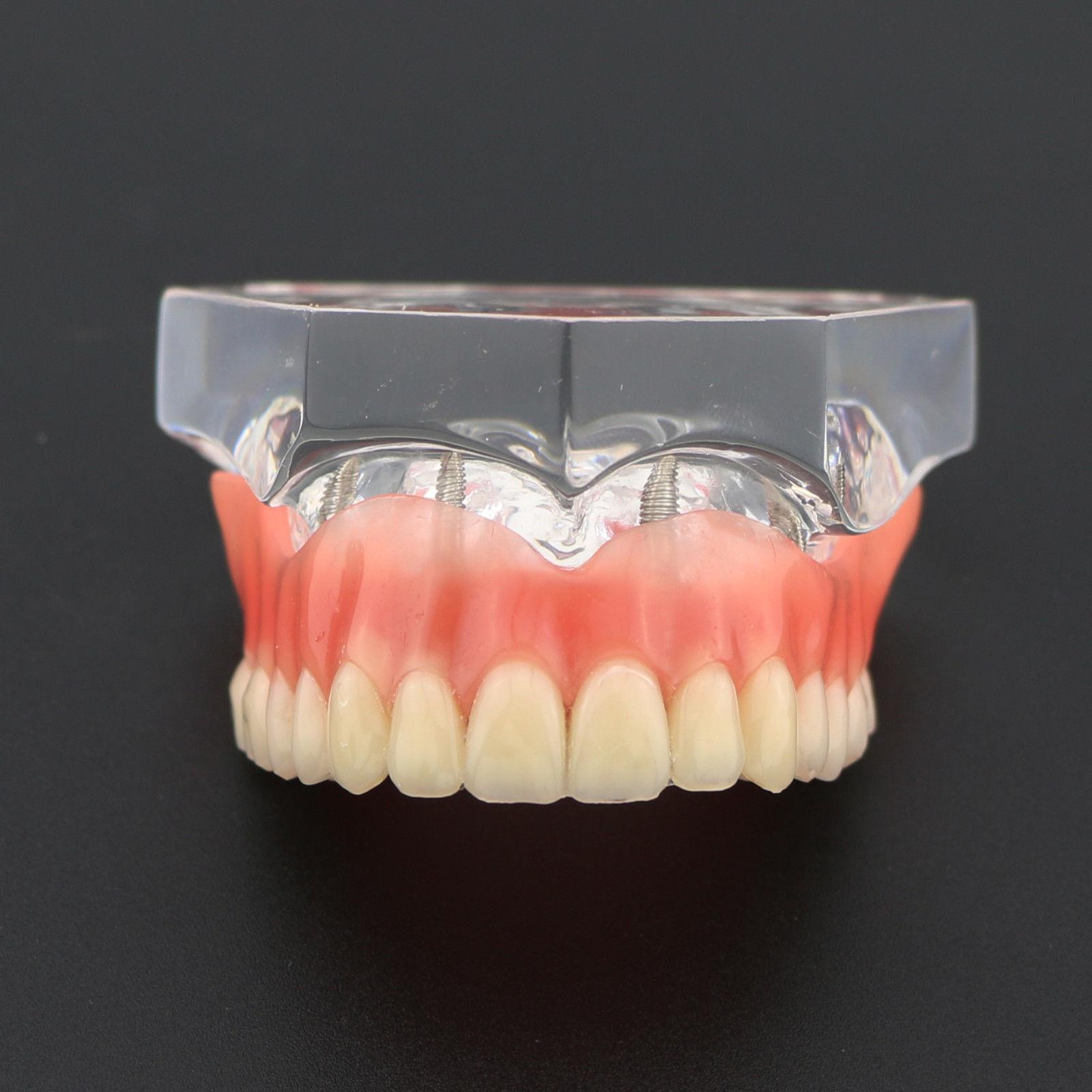 dental claro acrilico superior dentes modelo overdenture superior 4 implantes maxilar demo modelo 6001