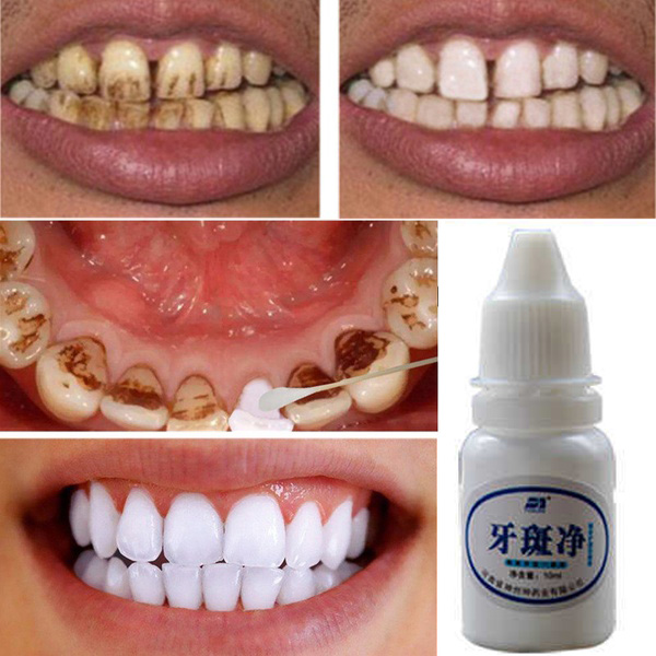 Dental Bleaching Liquid Magic Instant White Teeth System Teeth Whitening Smoke Stain Dental Bleaching Liquid Blanqueador