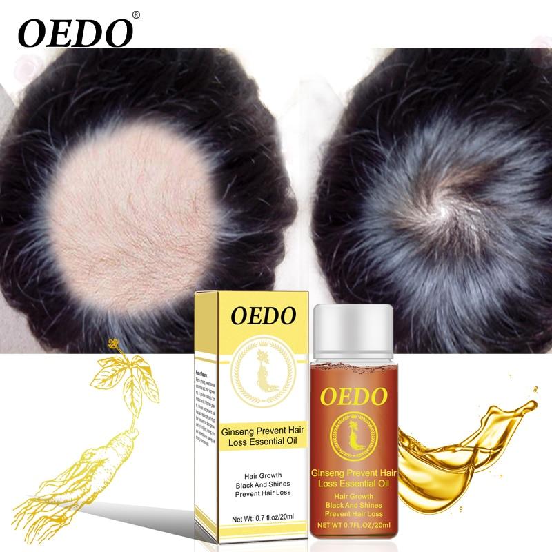 OEDO Ginseng crescita dei capelli essenza Anti perdita di capelli liquido ripristino rapido denso siero per la crescita dei capelli potente riparazione radice dei capelli