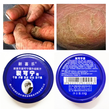 Powerful Traditional Chinese 33g Anti-Drying Crack Foot Cream Heel Cracked Repair Cream Removal Dead Skin Hand Feet Care