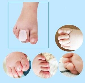 Image 4 - 1pcs Alluce Valgo Correzione Toe Separator Raddrizzatore Foot Pain Relief Piedi Cura Correttore Grande Osso Plantari Pollice Pedicure