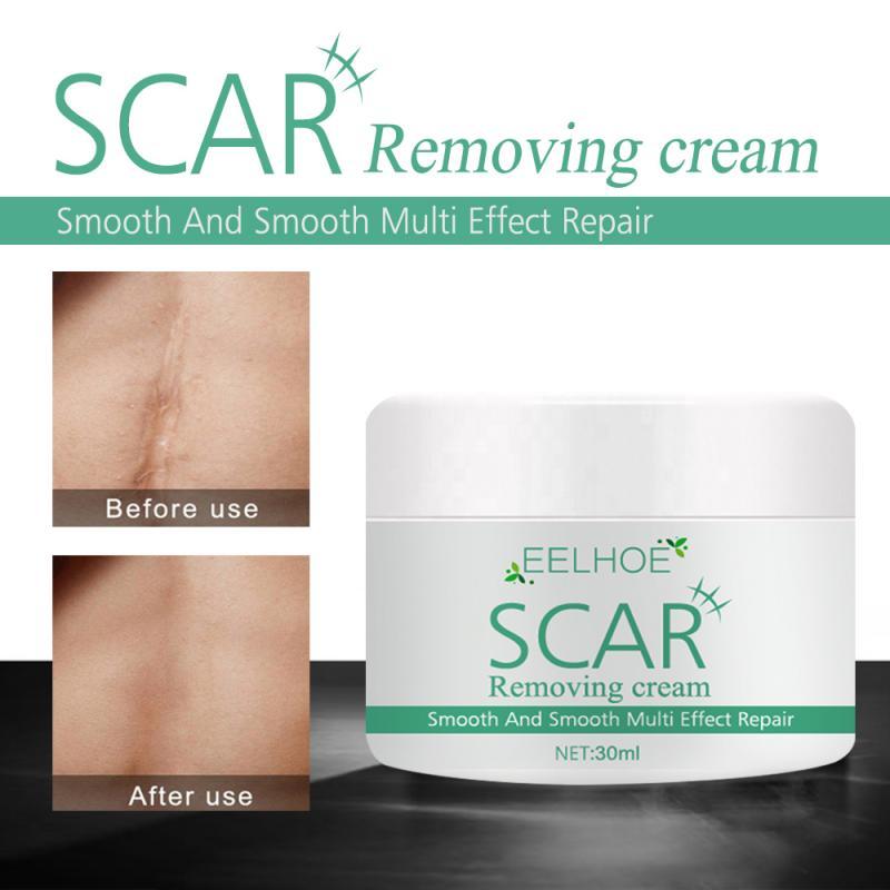 Крем для удаления шрамов от акне, шрамов и пятен, удаление пятен, лечение, противовоспалительный Восстанавливающий уход за кожей TSLM1