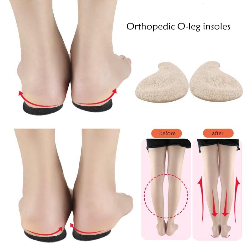 Gel Orthopedic Insoles O-leg Foot Varus Valgus Men Women Heel Pad Correction