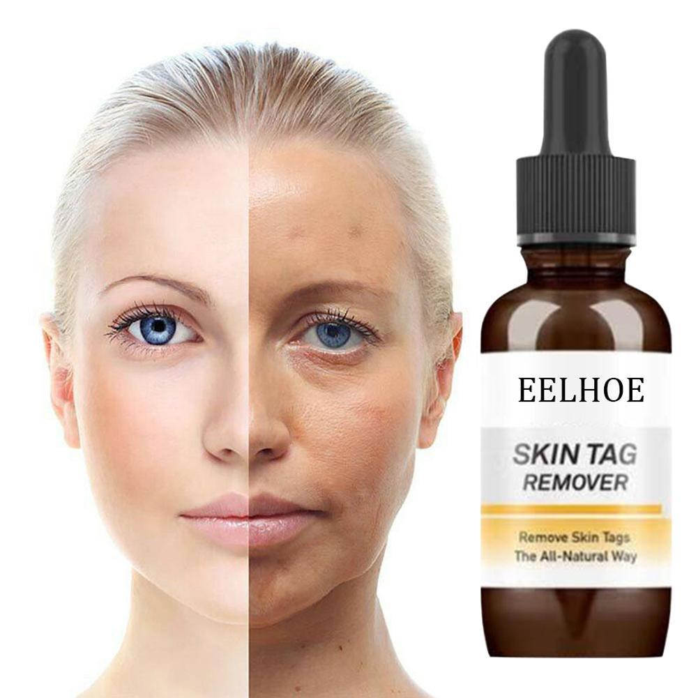 Mole Whitening Essential Oil Skin Tag Removal Solution Painless Removal  Spot Wart Cream Tag Dark Freckle Skin Removal Oil F J20A20