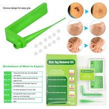 Домашний Применение микро тег для кожи Кротов, средство для удаления бородавок комплект нетоксичный зеленый микро группа кожи удаление тег...
