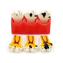 Modèle de dent carie dentaire, modèle de dent de carie dentaire, modèle de dent de dégradation, modèle de dent de dentiste, outils d'enseignement