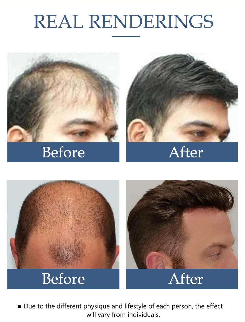 Hair Care Hair Growth Essential Oil Essence Hair Loss Liquid Treatment Health Care Beauty Dense Hair Growth Serum for Men Women 3