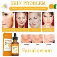 100% Pure Vitamin C Serum Liquid Freckle Remove Acne Dark Skin Hyaluronic Face Serum Care Spot Acid Fade Anti-Wrinkle Scars N9X5 4