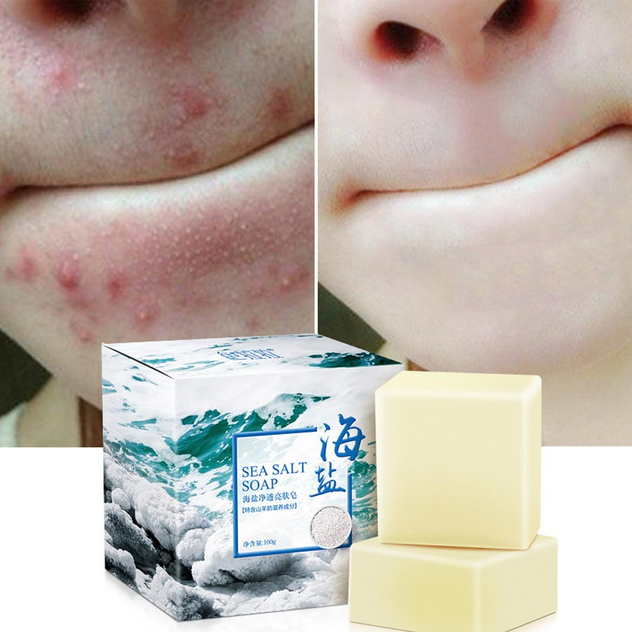 LAIKOU Sea Salt Soap Cleaner Oil Control  Removal Pimple Pore Acne Treatment Blackhead Remover Goat Milk Moisturizing Soap