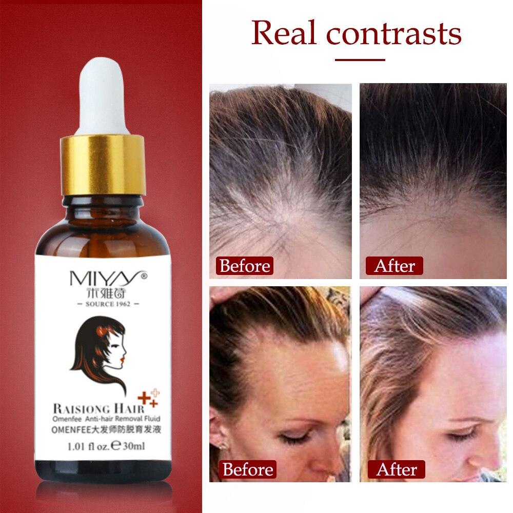 cabelo rapido crescimento cabelo tratamento anti 05