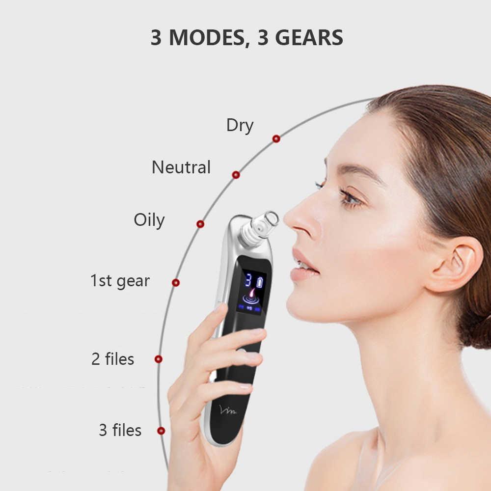 電気にきび真空クリーナーニキビ毛穴スキンケア鼻フェイスディープクレンジング吸引機フェイシャル美容ツール卸売