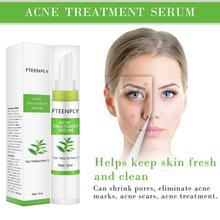 Acne Treatment Serum Repair Pimple Shrink Pores Blackhead Whitening Moisturizing Skin Care Anti-acne Scar Removal Cream