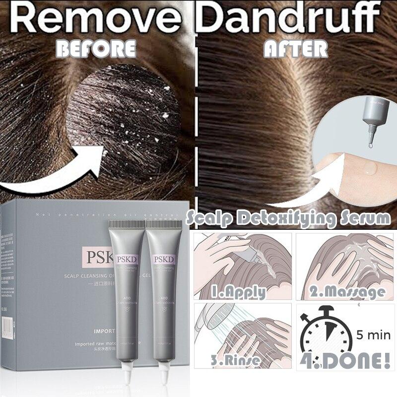 Сыворотка для удаления перхоти кожи головы удаляет кондиционер быстро избавляется от перхоти против выпадения волос очищающий гель для ух...