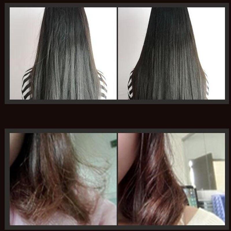 do tratamento couro cabeludo oleo 02