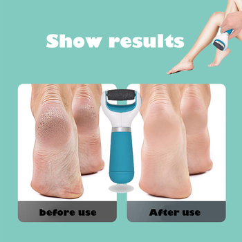 Foot File Grinder rollers Dead Skin Callus Remover Foot Pedicure Tools Feet Care Hard Cracked Foot Files Clean Tools foot files pedicure cracked dead skin remover kit foot file kit foot skin care for hard cracked dead skin removal skin care