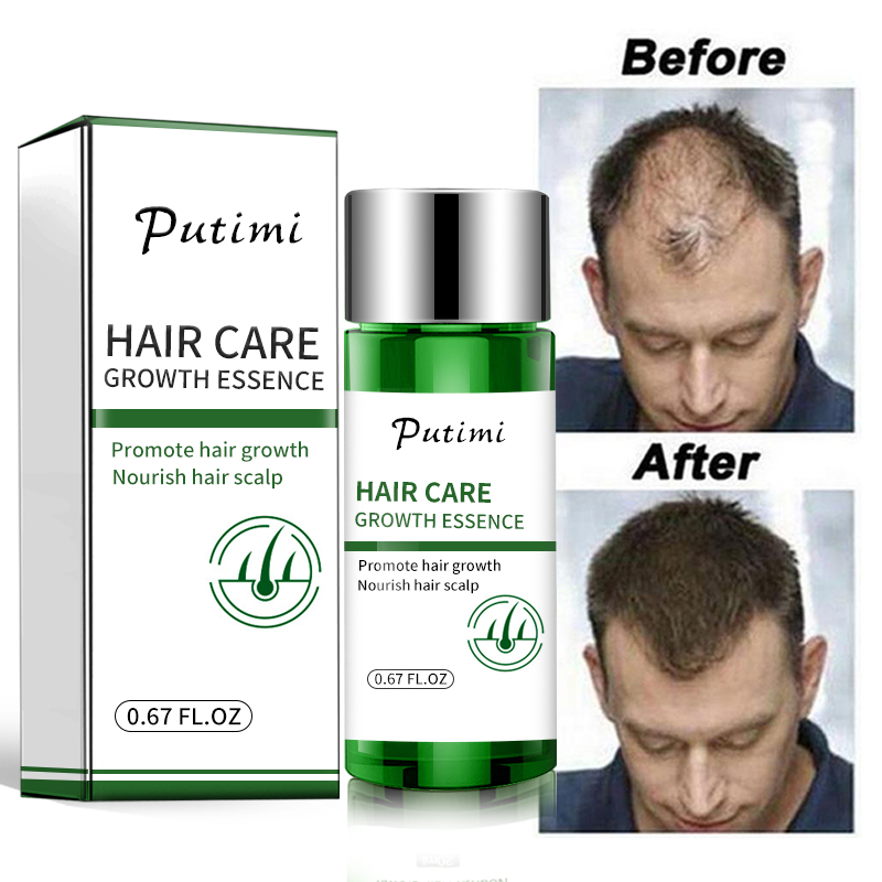 Anti Hair Loss Products Natural Ginger Essence Hair Growth Serum Fast Hair Growing Essence Regrowth Hair Growth for Women Men image