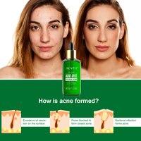 Acne Treatment Serum Facial Serum Anti Acne Scar Removal Cream Whitening Effectively Treat Repair Pimples Skin Care TSLM1 4