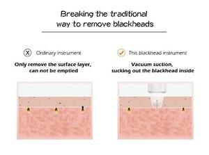 Image 4 - 6 טיפים טיפול פנים יופי מכשיר עור יהלומי Dermabrasion להסיר נקודות שחורות עור קילוף מכונה טיפול עיסוי Microdermabrasion