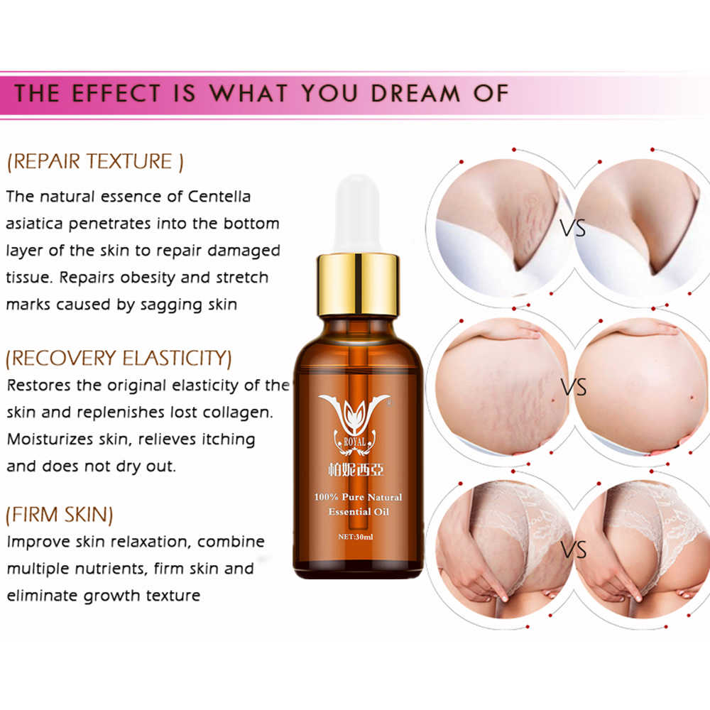 Eliminación de estrías aceites esenciales naturales puros removedor de estrías grasa postparto antiarrugas Crema para el cuidado de la piel