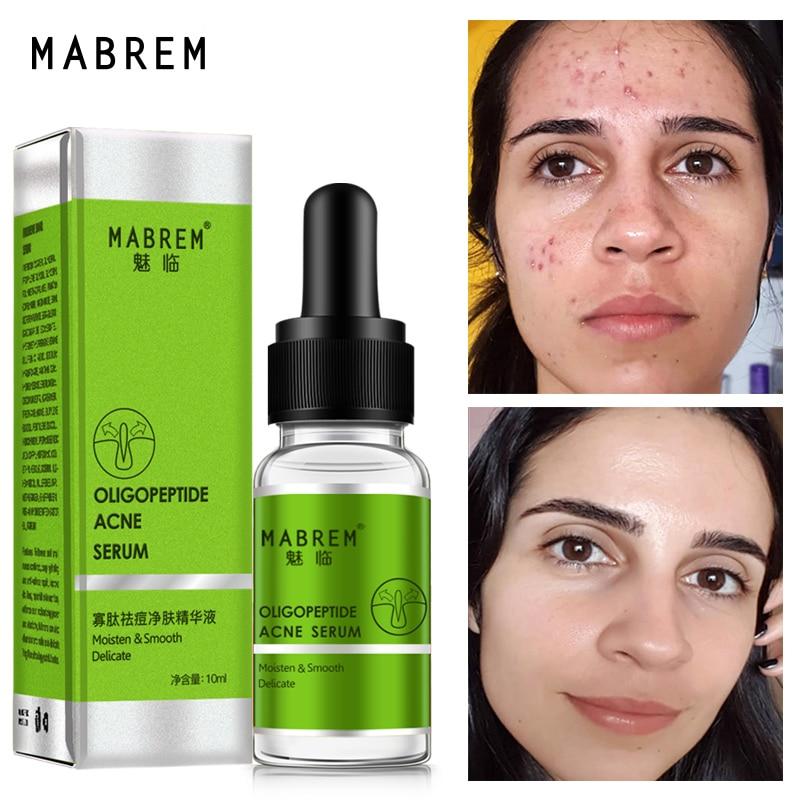 Oligopeptide Acne Cleaning Lotion Serum Acne Treatment Cream Pore Repair Whitening Anti Anging Winkles Essence Moisturizing 10ML