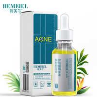 HEMEIEL Shrink Pores Serum Acne Treatment liquid Moisturizing Face Serum Anti-Acne Whitening Plant Cream Korean Pimple Skin Care