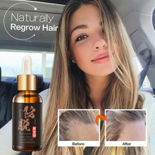 Hair Growth Treatment for Anti Hair Loss Products Beard Oil Repairs Damage Hair Root Hair Tonic Growth Hair Topical Solutions 6 bottle 600pcs prevent and cure hair loss fo ti root supplement for gray hair promote hair growth hair early white he shou wu