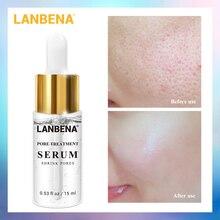 LANBENA Pore Treatment Serum Facial Oily Control Nose Blackh