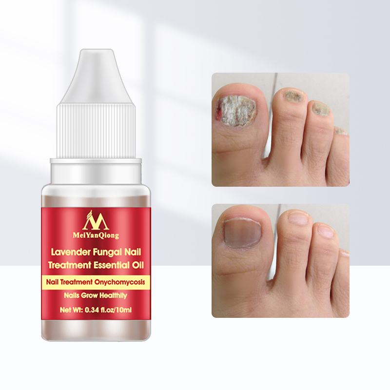 Сыворотка для лечения Ногтей от грибков онихомикоз паронихия противогрибковая инфекция ногтей травяной гриб для ногтей восстанавливающая...