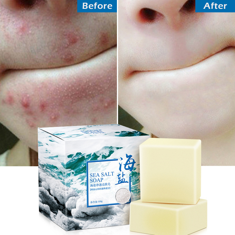 1 Pc Sea Salt Soap Cleaner Removal Pimple Pores Acne Handmade Wash Face Rice Milk Soap Moisturizing Skin Care Bath Soap TSLM2