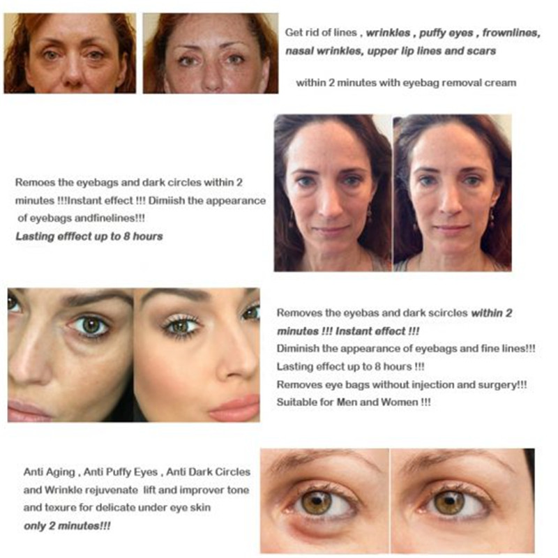 Eye-Cream-Anti-Puffiness-Wrinkles-Eye-Bag-Removal-Cream-Long-Lasting-Effect-Fine-Lines-for-Women-2-510x510