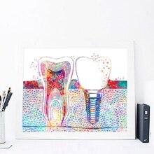 Акварельный плакат зубной имплантат принт подарок для дантиста стоматологическая клиника Настенный декор гигиенист офис искусство медицина холст живопись