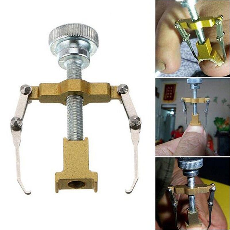 Nail Aligner Ingrown Toe Metal Gold Silver Colors Nail Corrector Pedicure Foot Fixer Recover Correction Nail Art Care Tools